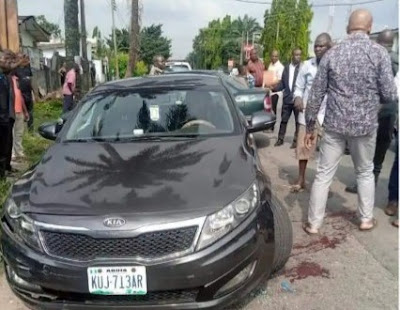 Tragedy As Assassins Shoot Man In The Face In Port Harcourt (Graphic Photos)