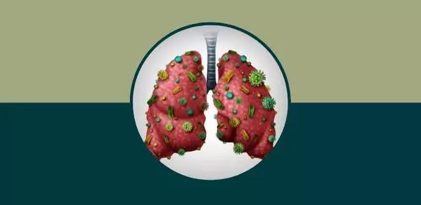 اعراض التهاب الرئة البكتيري, بكتيريا الرئة