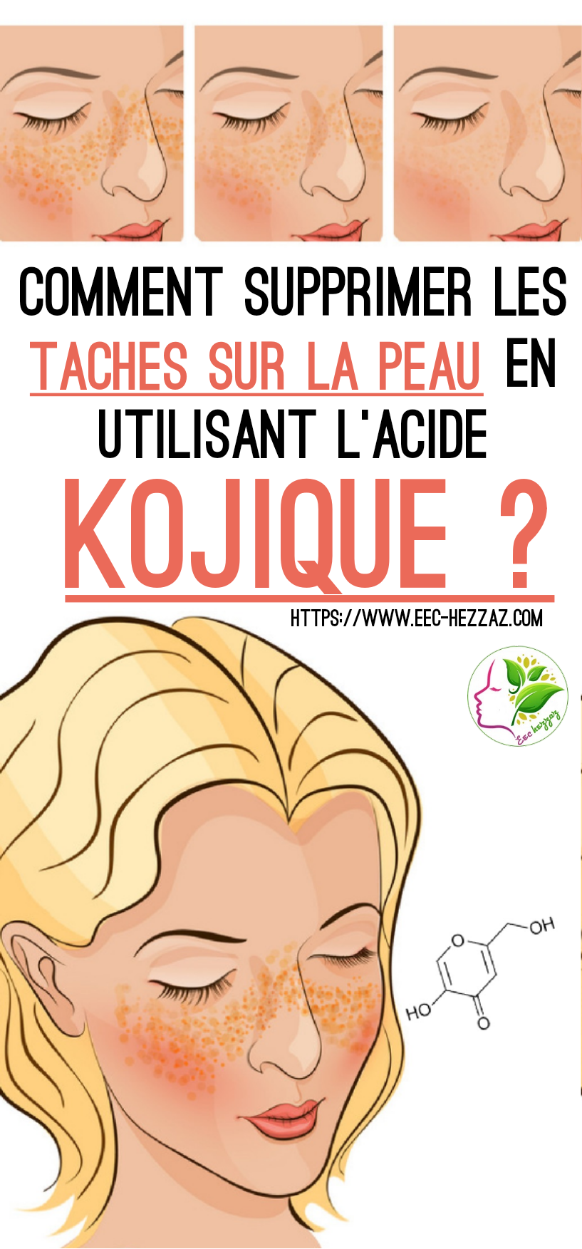 Comment supprimer les taches sur la peau en utilisant l'acide kojique ?