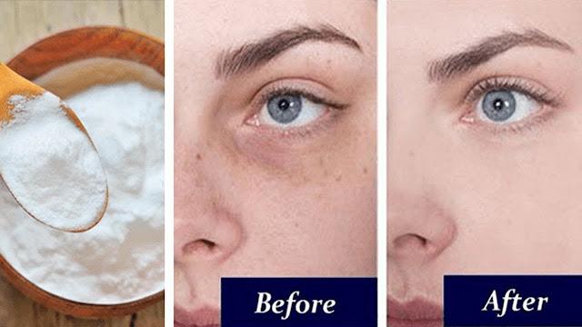 Masque au bicarbonate de soude pour éliminer les cernes en 15 jours