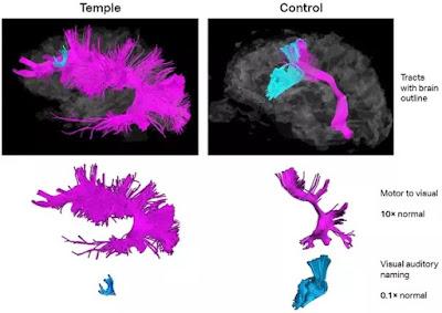 """Longe de ser uma """"patologia"""", o autismo é uma configuração cerebral sistemática inteira. """"Curá-lo"""" implicaria descartar por completo o cérebro do autista. Descrição da imagem #PraCegoVer: Comparação colorida de duas funções neurais (que eu não entendi bem) entre o cérebro da autista Temple Grandin, com uma ampla área rosa e uma pequena área azul, e o de uma pessoa neurotípica, com a área rosa menor e a azul maior. Fim da descrição."""