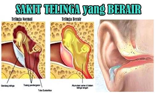 Obat Telinga Berair Di Apotik