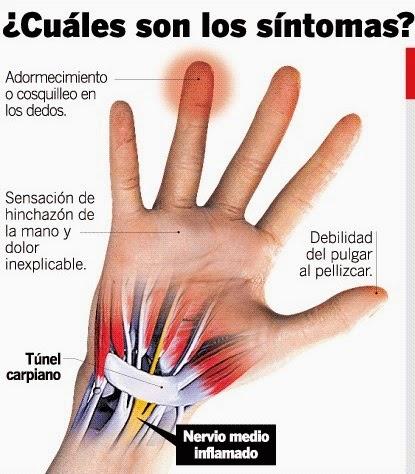 Embarazo del manos después dolor de muñecas y