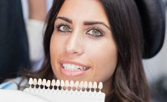 dental veneers pros cons straight white teeth