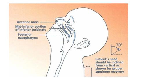 Diagram for how to collect Nasopharyngeal Collection for covid-19.