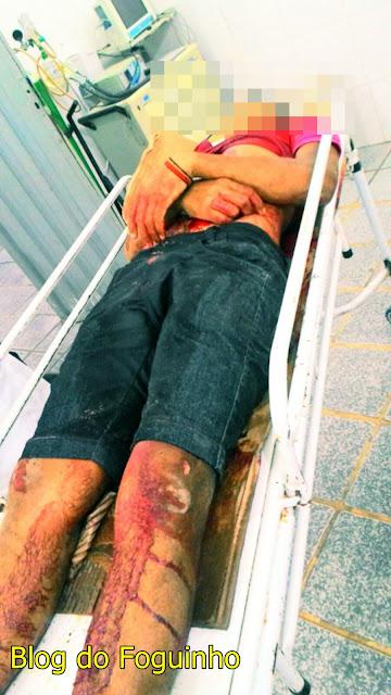 Jovem morre após tentar apartar uma briga na zona rural de São Bernardo.