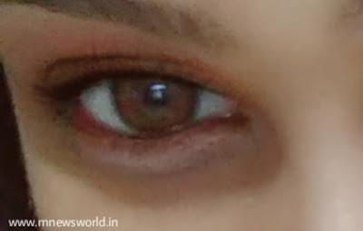Eyelids-eye-exercise-rnnewsworld
