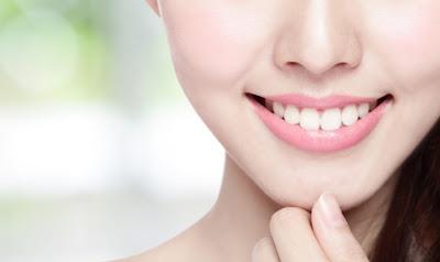 Tips dan Cara Memutihkan Gigi Secara Alami Tanpa Veneer