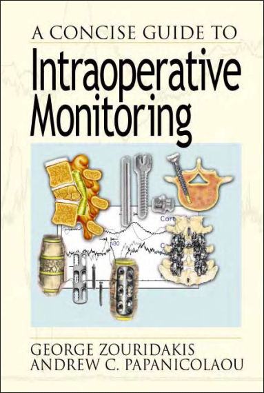 A Concise Guide to Intraoperative Monitoring PDF