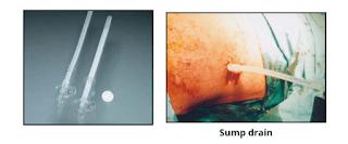 sump drain - surgical drain