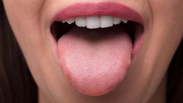 cek perubahan warna lidah