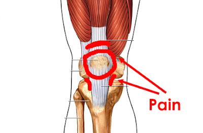 髕骨股骨疼痛症候群