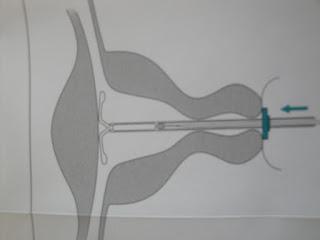 Sistema hormonal uterino (SIU)