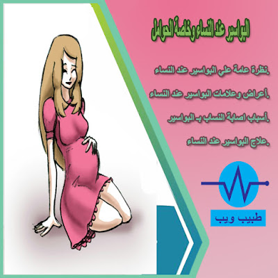 البواسير عند النساء وخاصة الحوامل Hemorrhoids in women