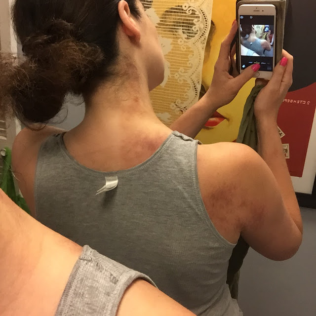 Gua sha bruises