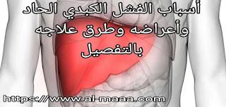 أسباب الفشل الكبدي الحاد