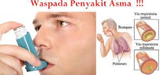obat herbal asma bronkial , obat herbal asma balita , obat herbal asma buat anak 5 tahun , obat herbal asma buat ibu hamil , obat herbal asma berat , obat herbal asma bronchial , obat asma herbal untuk balita , obat herbal asma dan batuk , obat herbal asma dan bronkitis