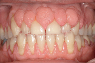 Gingival hyperplasia Classification, Symptoms, Causes, Treatment