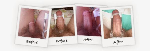sesudah dan sebelum menggunakan proextender