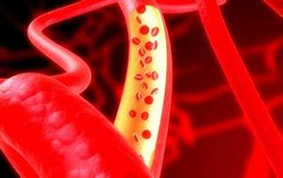 Benarkah Pembuluh Darah Pecah dapat Menyebabkan Kematian?
