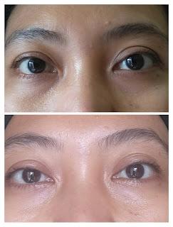 Review npure marigold eye serum