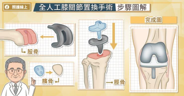 人工關節置換手術的進化