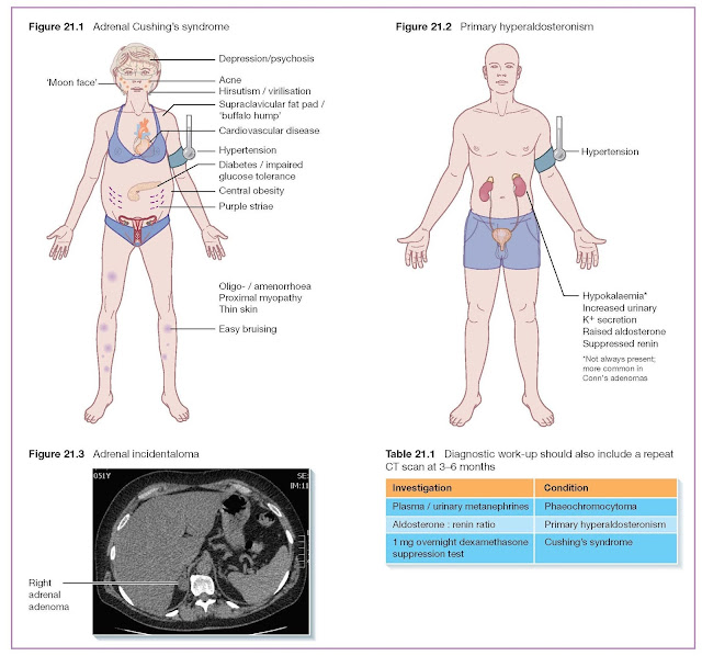Adrenocortical Tumours