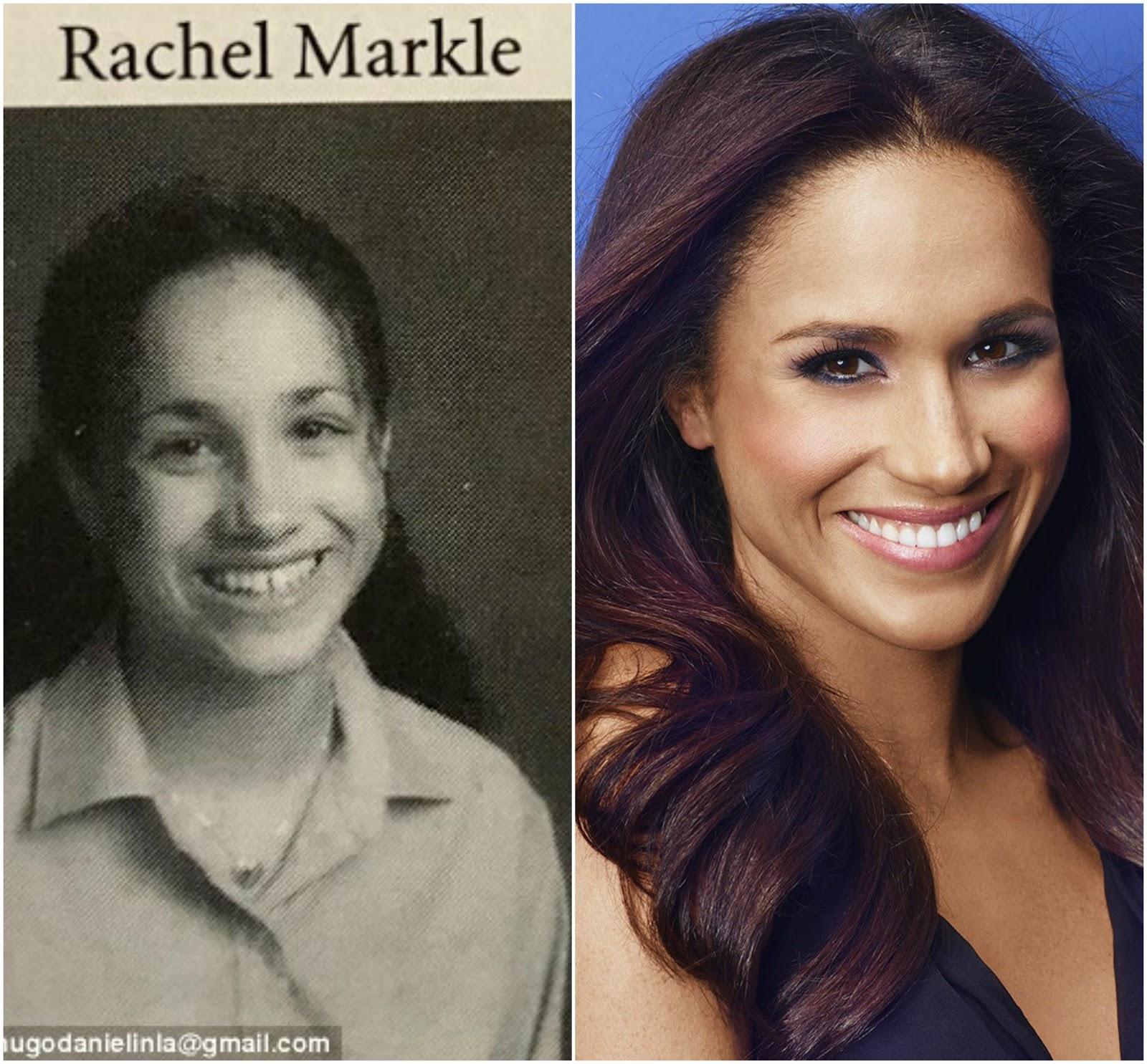 Meghan Markle S Shocking Plastic Surgery Transformation