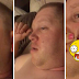 Esposa espreme cisto gigante que marido tinha no rosto há 4 anos