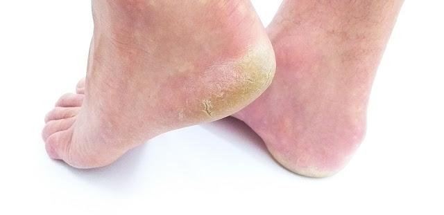 kurumuş ayak derisi için doğal çözüm ve tedavisi