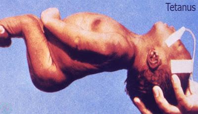 Tetanus,ধনুষ্টংকার রোগ