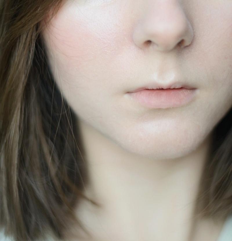 Jak dbam o skórę głowy i włosy?   Łojotokowe zapalenie skóry głowy, cienkie i delikatne włosy