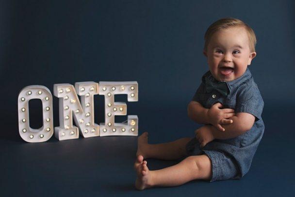 Risultati immagini per asher il bambino con la sindrome di down