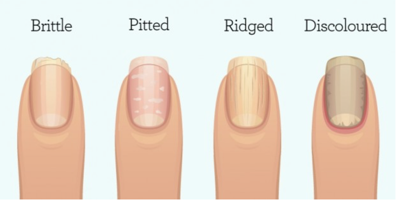 This is What Your FINGERNAILS Are Warning You About: Organ failure, Inflammation, or worse.