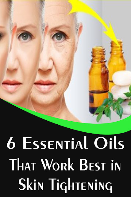 6 Essential Oils That Work Best in Skin Tightening   No one wants to age, right? Practically, the entire corporate sector survives on people purchasing products that would supposedly reduce one's age and make them look young. But, there are certain oils that would do the same without leading to any side-effects. Also, they aren't extremely expensive and people can readily afford them. But, what trumps everything is the scientific verification behind their usefulness that can denounce anything that is artificial and harmful.    What these oils do is tighten the skin so that it doesn't appear wrinkly and saggy. This would give an appearance of youthfulness that would belie a person's age.    Let's see some of them:   This oil has several advantages as it helps in removing spots, blemishes, bruises, blackheads, and would keep the skin fresh for years to come.    It is pretty simple in its usage. All one has to do is mix it with a bit of coconut or olive oil and apply it on the desired body parts. But, you should probably apply a bit of it initially to see if it reacts badly.    Neroli Oil Considerably harder to locate than Frankincense oil, Neroli oil is one the best oils in the market due to its amazing properties. This oil can pretty much be applied for any skin condition, and one important advantage is that it keeps the skin elastic while keeping it tight, that would defy the laws of aging.    The best way to apply it would be to rub it on the skin a bit and let the atmosphere do the rest.    Lavender Oil This oil is perfect when it comes to loose skin. It also speeds up healing of bruises and cuts on the skin and also relieves burn injuries. Furthermore, Lavender oil has strong anti-bacterial properties which prevent harmful bacteria from settling on the skin.    Lavender oil must always be applied after diluting it with a hint of coconut oil. After that, smear it on the affected skin.    Grapeseed Oil One of those oils that constitutes most of the anti-stretch mar