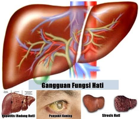 Testimoni Legalon Gangguan Fungsi Hati