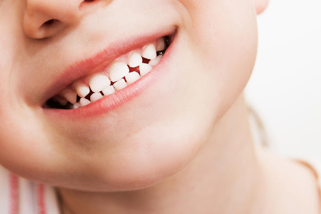 cara menghilangkan karang gigi yang sudah mengeras