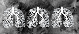 Why Asbestos and Mesothelioma Cancer Should Be Spoken in the Same Sentence