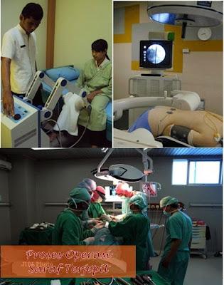 Pengobatan Tradisional Saraf Terjepit, Cara Menyembuhkan Saraf Terjepit Secara Efektif Dan Cepat Tanpa Operasi