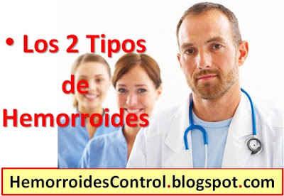 tipos-de-hemorroides-internas-externas