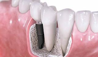 Thời gian nào trồng răng giả là hợp lý sau khi bị mất răng?