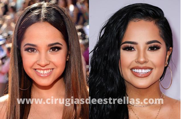 Becky G antes y después