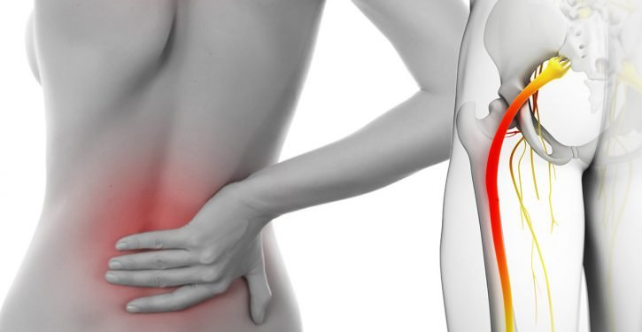 The Best Natural Sciatica Treatments To Stop The Pain Of The Hip, Lower Back And Legs