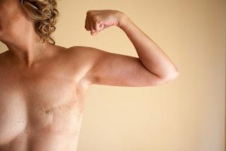 Οι θάνατοι από καρκίνο του μαστού μειώθηκαν φέτος κατά 39%