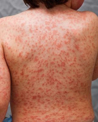 Uno de los síntomas que presenta la primera fase del síndrome de Kawasaki es el enrojecimiento de espaldas. (Foto: Kawasaki Disease Foundation).