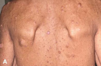 神经纤维瘤病的背部多发性皮肤纤维瘤和咖啡斑