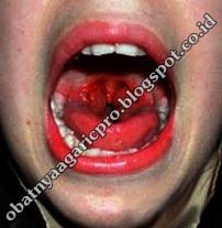 Obat Difteri