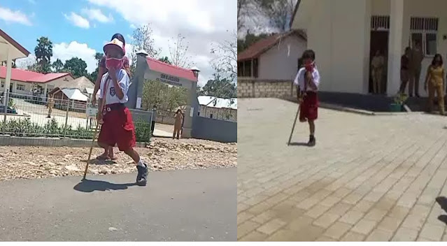 Kisah Bocah SD Dengan Satu Kaki Menuju Sekolah Sejauh 1 Kilometer