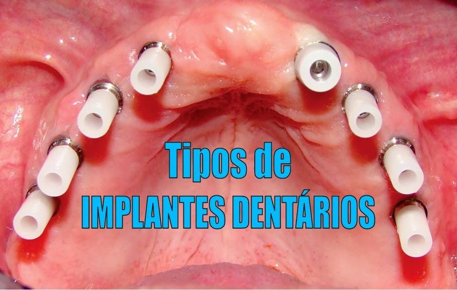tipos de pinos implantes dentarios
