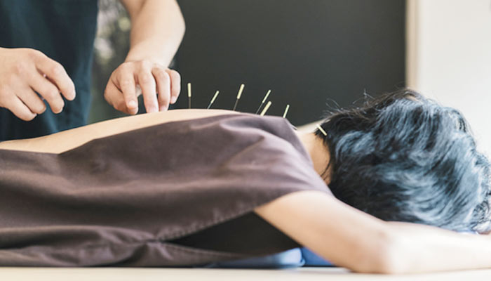 acupuncture-in-hindi